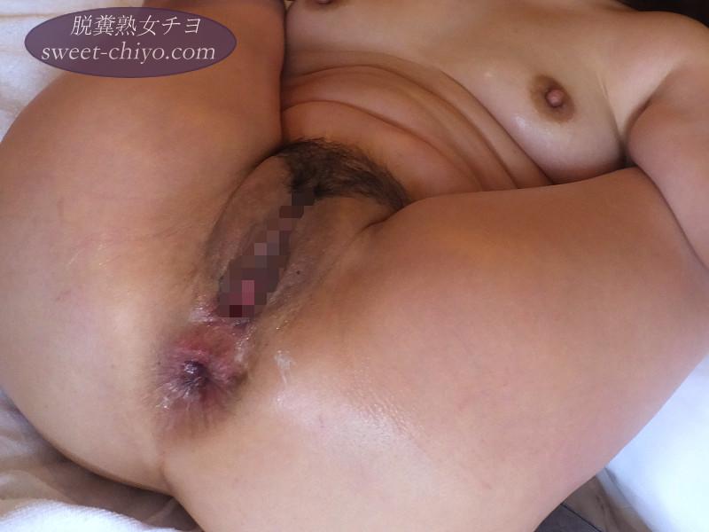 人妻熟女ポッカリ開いたアナル【個人撮影】
